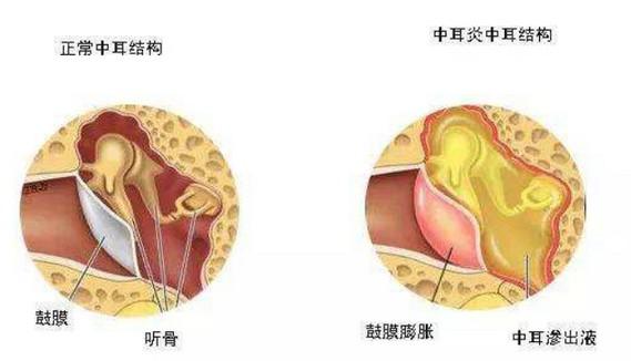 分泌性中耳炎能自愈吗,最佳治疗方法,多久能好?