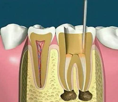 龋齿填补方法,治疗要多少钱,儿童得此病怎么办?