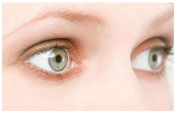 脸部整容如何消肿,热敷还是冷敷?消除眼肿的快速方法