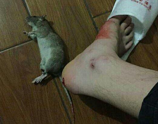 被老鼠咬了会怎样?该怎么办?如果被咬伤要怎么处理?