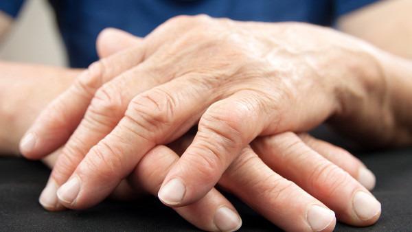 结缔组织病有什么病变表现?如何去治疗?
