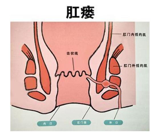 肛瘘的治疗方法,要花多少钱,保守治疗痊愈过程