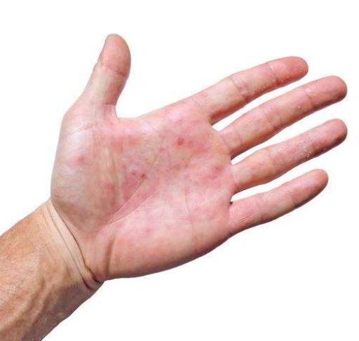 手掌发红是不是上火,严重吗?手掌发紫是怎么了?