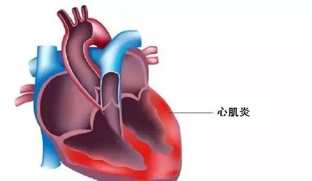 心肌炎严重吗?治疗心肌炎的最好办法