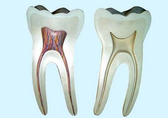 牙髓炎症状,会自愈吗,治疗要多少钱?