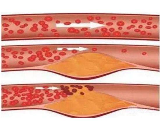 如何降低胆固醇,什么方法最好?血脂太高吃什么?