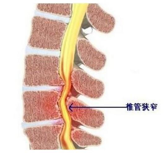 腰椎管狭窄治疗哪家医院好,腰肌劳损有哪些症状和护理措施
