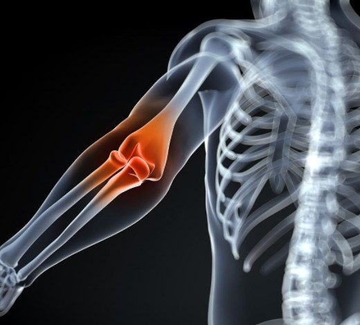 网球肘应怎样治疗和护理,手腕疼是怎么回事?