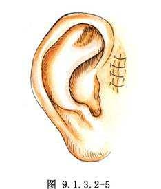 耳前瘘管手术的最佳年龄对于疤痕有影响吗?手术的成功率高吗?