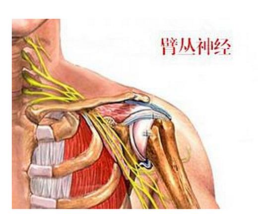 臂丛神经痛的治疗,有没有特效药,锻炼主要动作