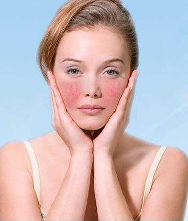 脸上过敏有哪些症状?怎么办?