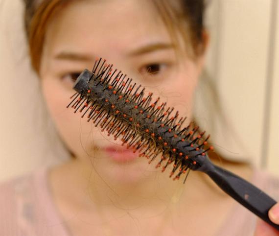 掉发严重怎么办,如何治疗脱发?头发怎样变浓密?