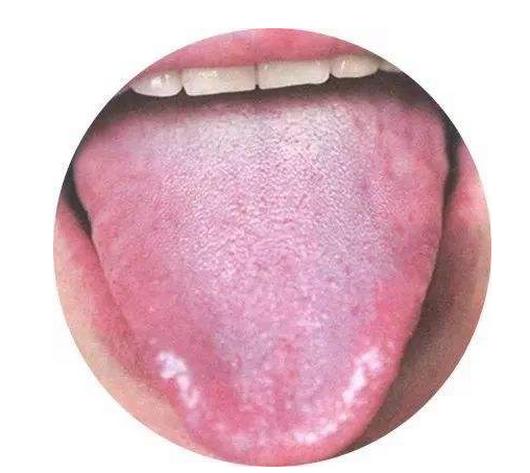 舌苔发白怎么办,如何快速去除,吃什么水果?