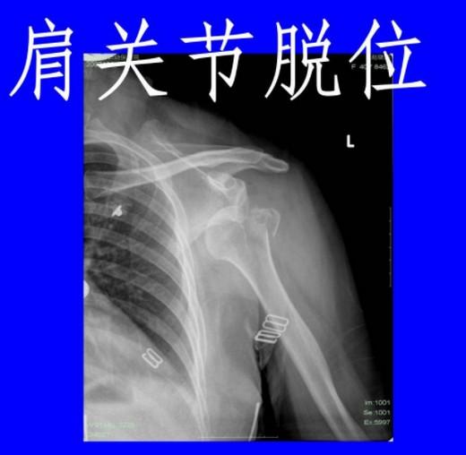 肩关节脱位复位术,神经损伤治疗法,怎样确定肩膀脱臼了?