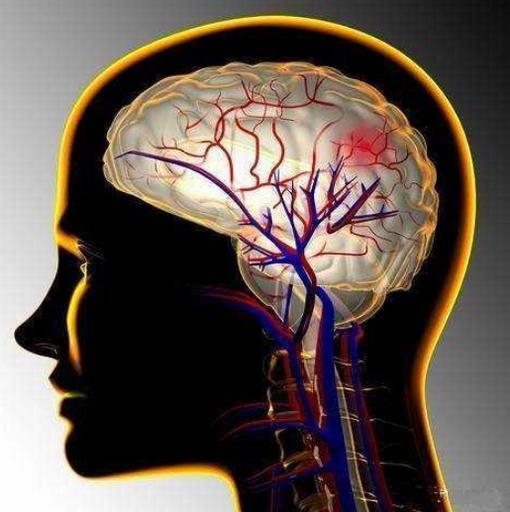 脑出血后遗症有哪些,一般寿命多久,二次复发前兆