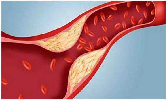 高甘油三酯血症诊断标准,这种病严重吗,吃什么食物?
