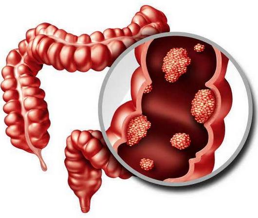 直肠息肉手术多少钱,怎么做,赘生物长0.7cm会癌变吗?