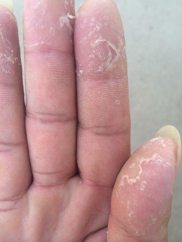 手脱皮是什么原因造成的?快速恢复的方法有哪些?