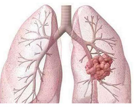 肺结核能治好吗,前期有什么症状,一起吃饭会传染吗?