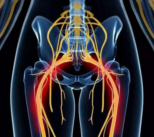 坐骨神经痛吃什么药,会自愈吗,治疗偏方是什么?
