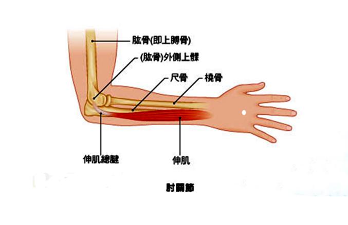 患有网球肘,什么治疗方法最有效?