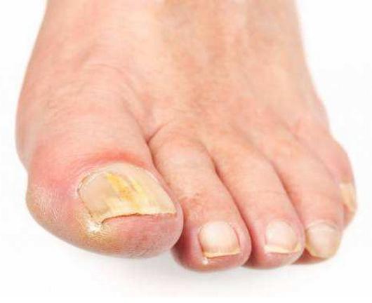 脚趾甲发黄,起褶皱怎么回事,指甲厚颜色黄是癌症吗?