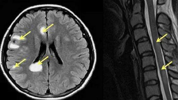 急性播散性脑脊髓炎严重吗,死亡率高吗,治疗方法!