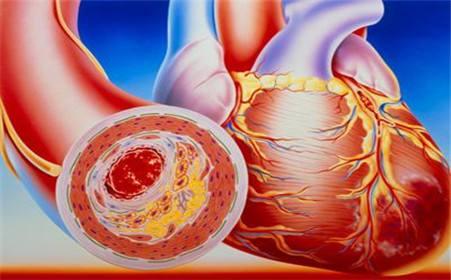 右下肢动脉硬化闭塞症的一般寿命有多少,打通下肢血管闭塞的<a href=http://xuetangzaixian.com/zhongyao/ target=_blank class=infotextkey>中药</a>方子有哪些
