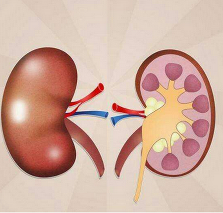 尿毒症早期症状,得病后还能活多久,肾不好的信号