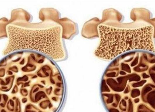 成骨不全症一般能活多久,基本分型和最轻度症状