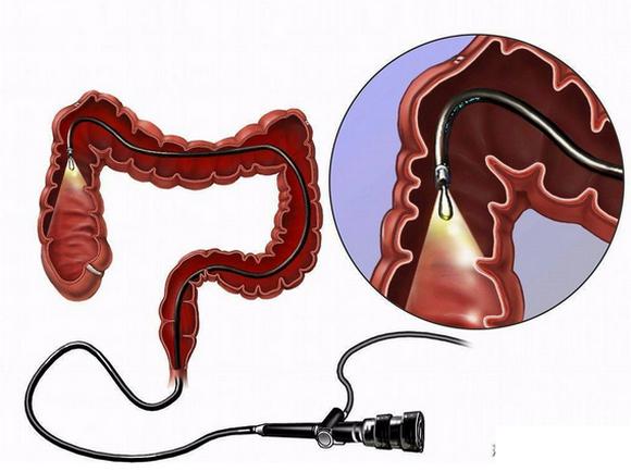 无痛肠镜检查痛苦吗,哪里做的好?为什么说不要做肠镜?