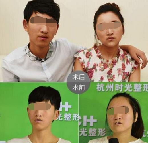 唇腭裂造成的原因,整形多少钱,兔唇鼻子塌修复成功率