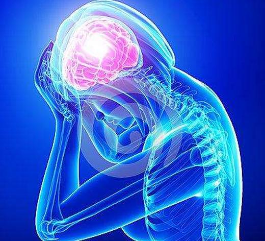 神经性偏头痛怎么治,药物怎么选?快速止疼妙招