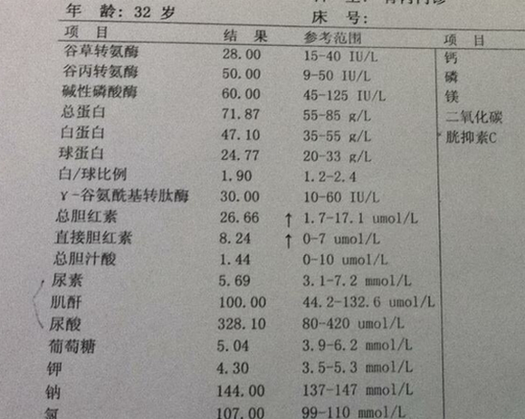 总胆红素偏高什么原因,多少算高?如何降低指标?