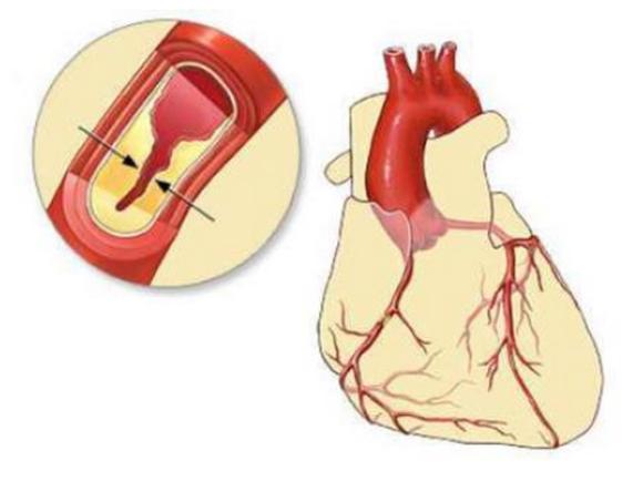 心肌缺血严重吗,可以自愈吗?得病后能活多久?