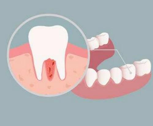 牙周炎吃什么药,牙龈炎能自愈吗,出现肿痛怎么办?
