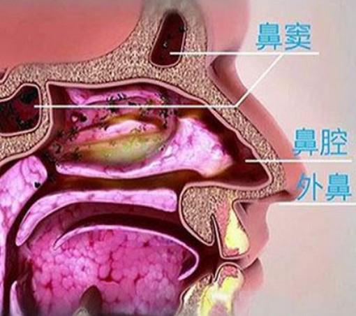慢性鼻咽炎的症状,它与鼻咽癌的区别,如何根治?