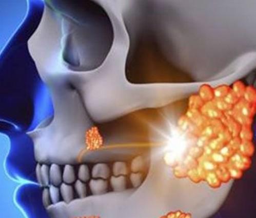 腮腺炎吃什么药,怎样确定得病,早期症状有哪些?