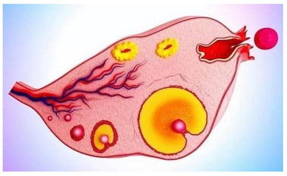 多囊卵巢综合症原因,好不好治疗,什么人容易得?