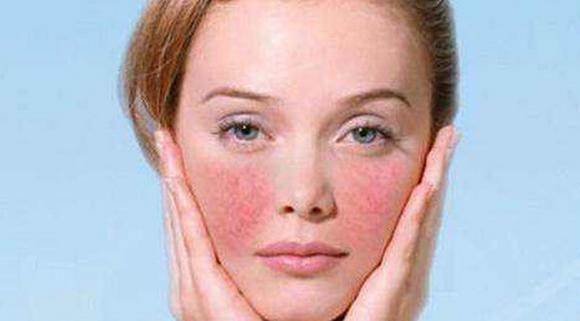 换季皮肤过敏怎么办,与哪些原因有关,擦什么药?