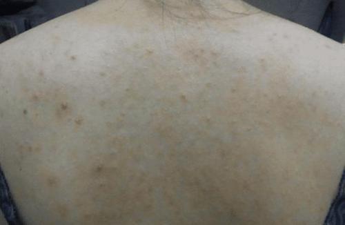 胸前长痘痘出现好多个小疙瘩米粒状,是艾滋病的发病前兆吗?