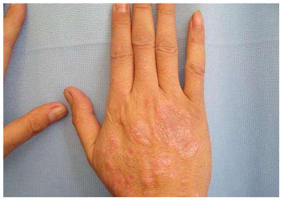 早期银屑病症状,最初什么样,消退期出红点吗?