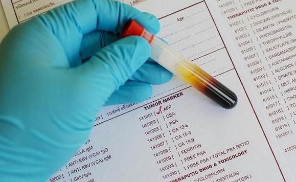 甲胎蛋白偏高原因,数值15正常吗,afp正常值是多少?