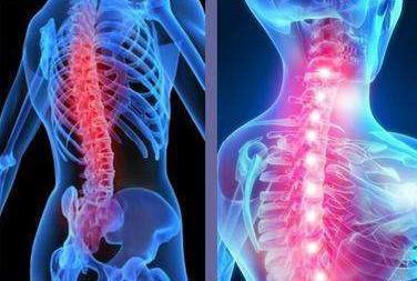 强直性脊柱炎严重吗?能治好么?