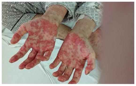白血病能活多久,为什么会得,得病后皮肤有何表现?