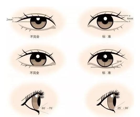 怎样变双眼皮,用牙签靠谱吗,有没有简单有效的方法?