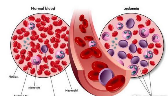 白血病怎么引起的,一般能活多久,早期症状有哪些?