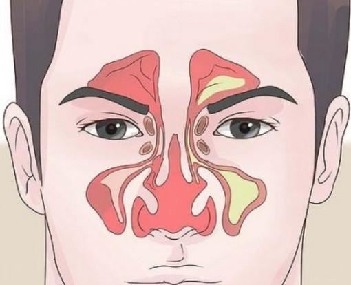 鼻窦炎有哪些症状和特征,头痛的缓解方法,鼻咽癌出血规律