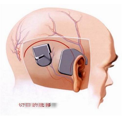 人工耳蜗后期维护费用,手术需要多少钱,助听器贵吗?