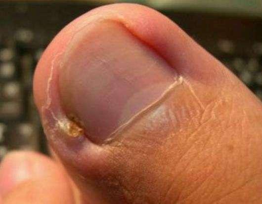 脚趾甲变厚怎么治疗,脚趾甲变黄变厚有粉末用什么药治疗能恢复吗?